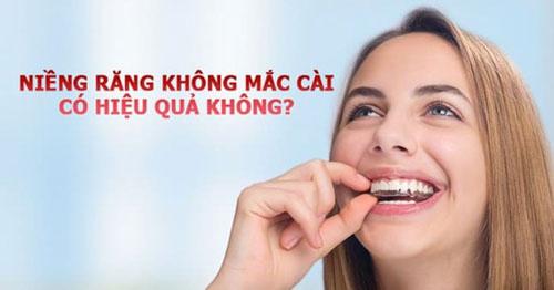 Niềng răng không mắc cài có hiệu quả không