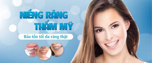 Niềng răng là giải pháp khắc phục răng mọc lệch tốt nhất