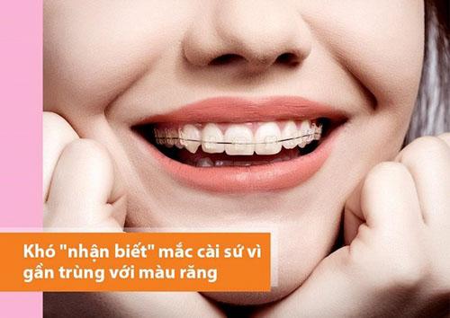 Niềng răng mắc cài sứ đảm bảo thẩm mỹ cao
