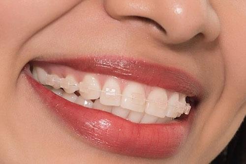 Niềng răng mắc cài sứ dây trong đảm bảo thẩm mỹ cao