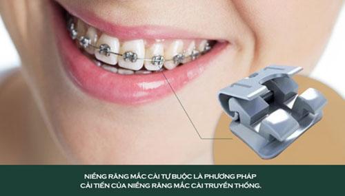 Niềng răng mắc cài tự buộc có tốt không?