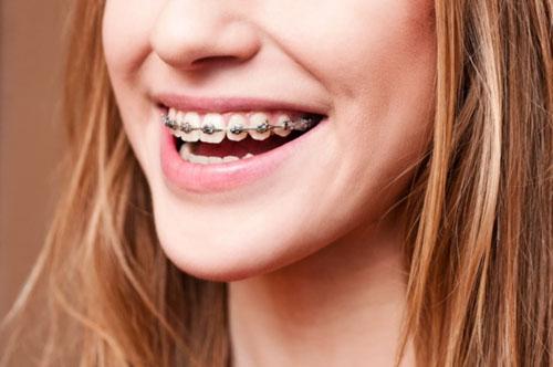 Niềng răng ở người trưởng thành sẽ tốn nhiều thời gian hơn