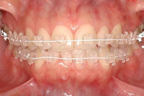 Niềng răng pha lê chỉ phù hợp cho trường hợp răng sai lệch nhẹ
