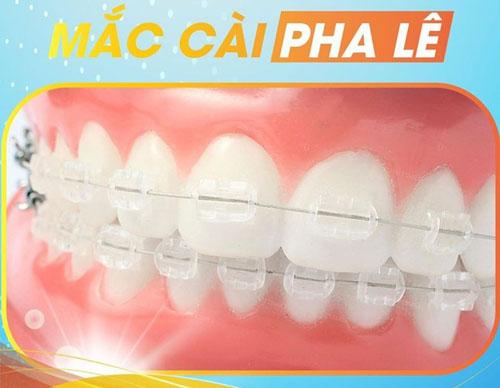 Niềng răng pha lê có tốt không?