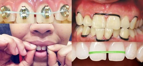 Niềng răng tại nhà bằng dây thun, dây thép tự chế