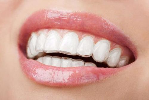 Niềng răng trong suốt đảm bảo thẩm mỹ cao
