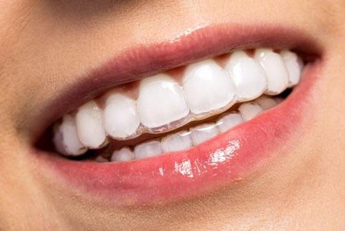 Niềng răng trong suốt đảm bảo tính thẩm mỹ cao