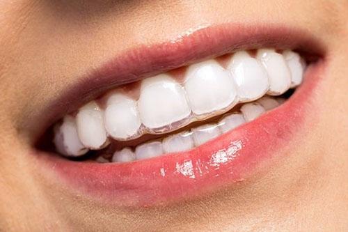 Niềng răng trong suốt là phương pháp chỉnh nha tốt nhất khi đã bọc răng sứ