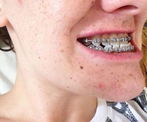 Niềng răng xong bị móm có thể do thực hiện sai kỹ thuật