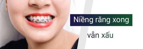 Niềng răng xong vẫn xấu nguyên nhân do đâu?