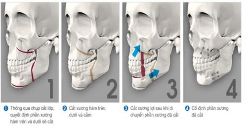 Phẫu thuật chỉnh hình răng mọc lệch