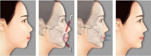 Phẫu thuật hàm hô giúp gương mặt cân đối, chuẩn khớp cắn
