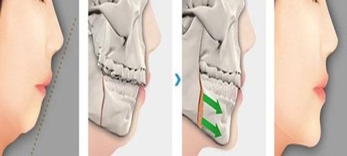 Phẫu thuật vẩu hàm trên không gây nguy hiểm khi thực hiện tãi địa chỉ uy tín