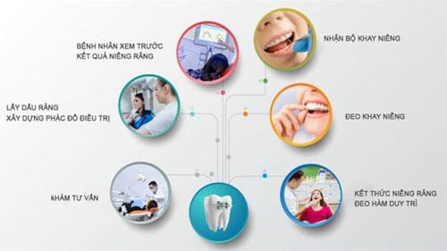 Quy trình niềng răng trong suốt Invisalign