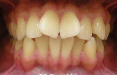 Răng cửa mọc lệch hình chữ V