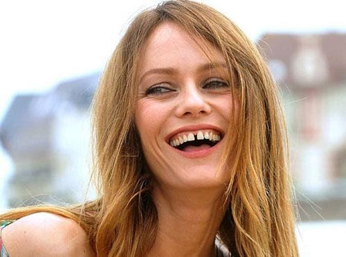 Răng cửa thưa ảnh hưởng nghiêm trọng đến thẩm mỹ