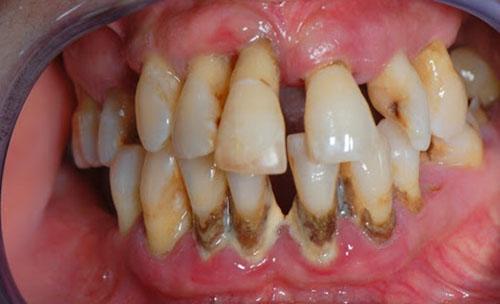 Răng cửa thưa có thể do bệnh lý răng miệng