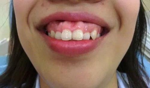 Răng hô ảnh hưởng nghiêm trọng đến thẩm mỹ