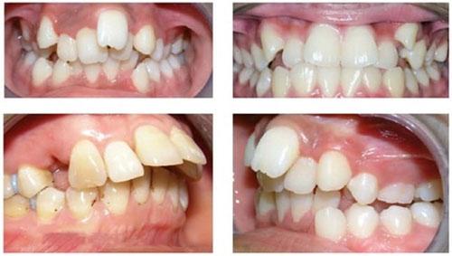 Răng hô là một dạng sai lệch khớp cắn khá phổ biến