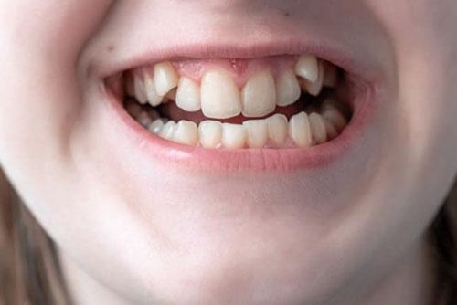 Răng khấp khểnh là tình trạng khá phổ biến ở nhiều người