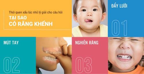 Răng mọc khấp khểnh có thể do thói quen xấu lúc nhỏ
