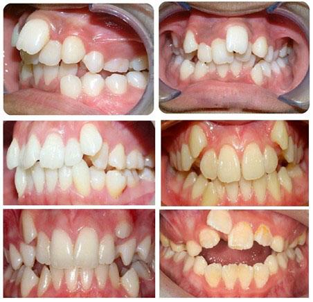 Răng mọc lệch ảnh hưởng nghiêm trọng đến tính thẩm mỹ