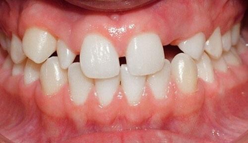 Răng mọc lên có kích cỡ nhỏ hơn cung hàm tạo khe hở giữa các răng