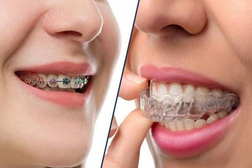 Răng sau khi bọc sứ vẫn niềng được tùy từng trường hợp