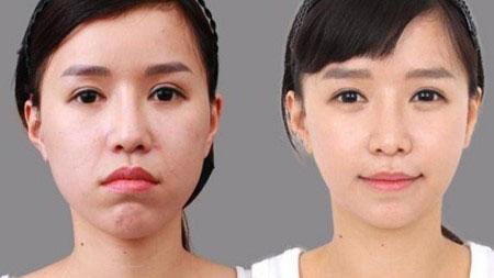 Sau phẫu thuật thấy ngay sự thay đổi tích cực trên gương mặt