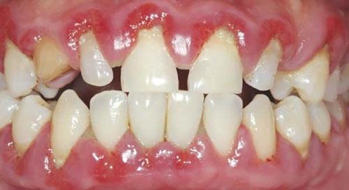 Sức khỏe răng miệng chịu nhiều tác động xấu khi răng cửa bị thưa