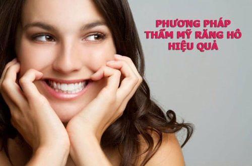 Thẩm mỹ răng hô bằng phương pháp nào hiệu quả?