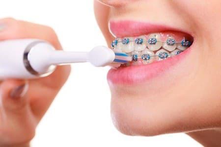 Thời gian niềng răng cũng bị ảnh hưởng bởi chế độ vệ sinh răng miệng