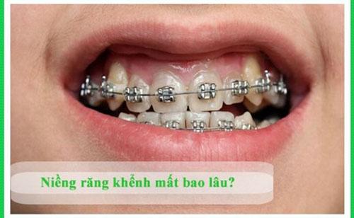 Thời gian niềng răng khểnh phụ thuộc nhiều yếu tố
