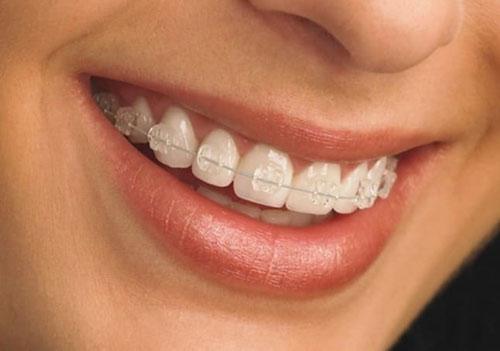 Thời gian niềng răng mắc cài sứ dây trong phụ thuộc nhiều yếu tố