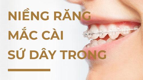 Tìm hiểu phương pháp niềng răng mắc cài sứ dây trong