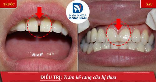 Trám răng cửa thưa nhẹ
