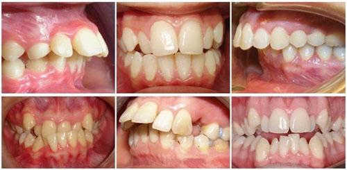 Tùy vào từng mức độ lệch lạc của răng mà sẽ có cách khắc phục phù hợp