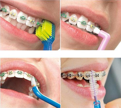 Vệ sinh răng niềng kỹ lưỡng