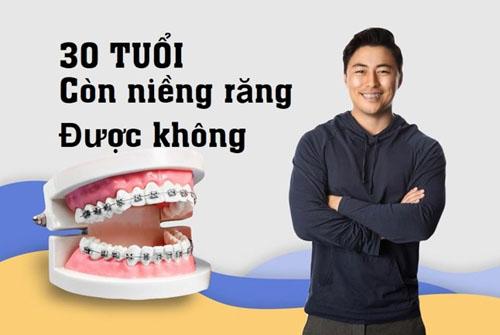 30 tuổi niềng răng được không? Một số điều cần lưu ý