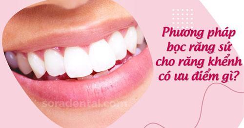 Phương pháp bọc răng sứ cho răng khểnh có ưu điểm gì?
