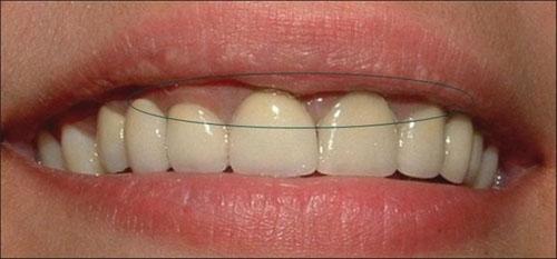 Nướu răng thâm nhẹ