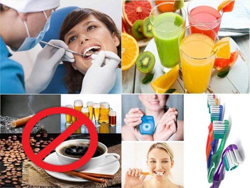 Chú ý chăm sóc răng sau khi bọc sứ