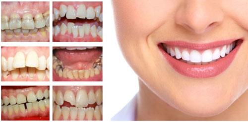 Các trường hợp nên bọc răng sứ