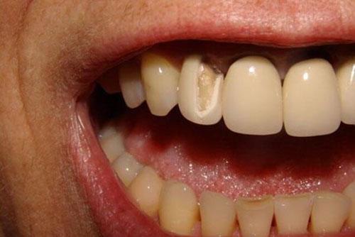 Răng sứ bị vỡ