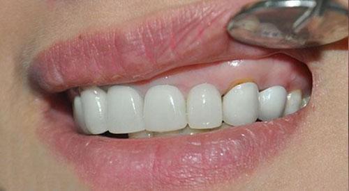 Hở răng sứ dễ gây viêm nướu