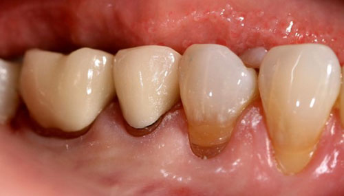 Mắc các bệnh lý răng miệng