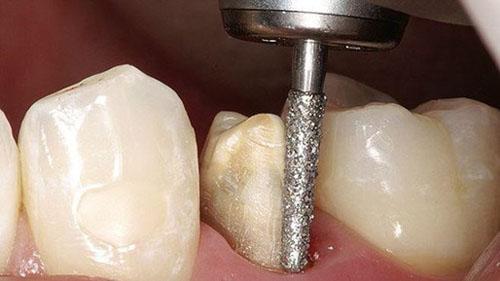 Mài cùi răng đòi hỏi tỉ lệ nhất định