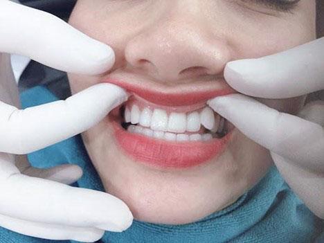Quá trình bọc sứ cho răng khểnh diễn ra an toàn