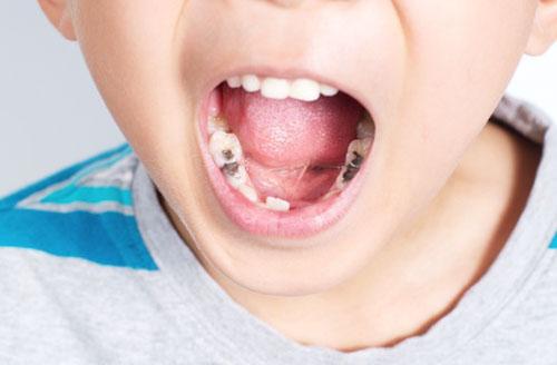 Ảnh hưởng vị trí mọc răng vĩnh viễn về sau