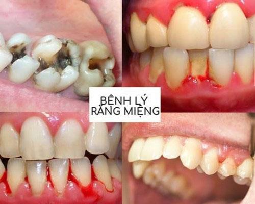 Bệnh lý răng miệng dễ gây hôi miệng